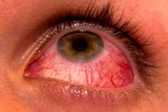 cataract surgery, eye issue, pink eye